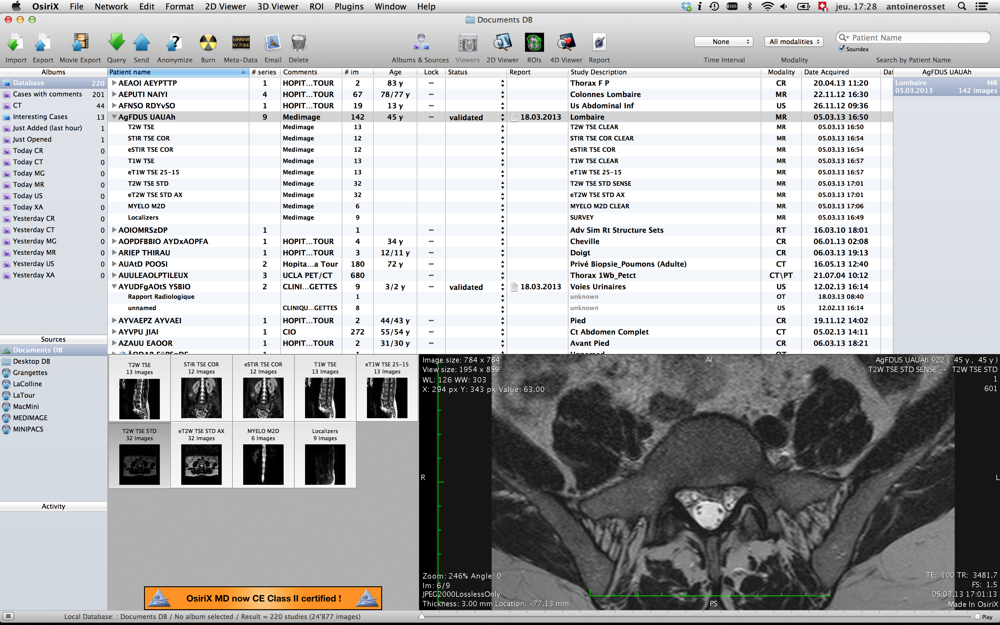 DICOM viewer OsiriX    | LABIOPRO